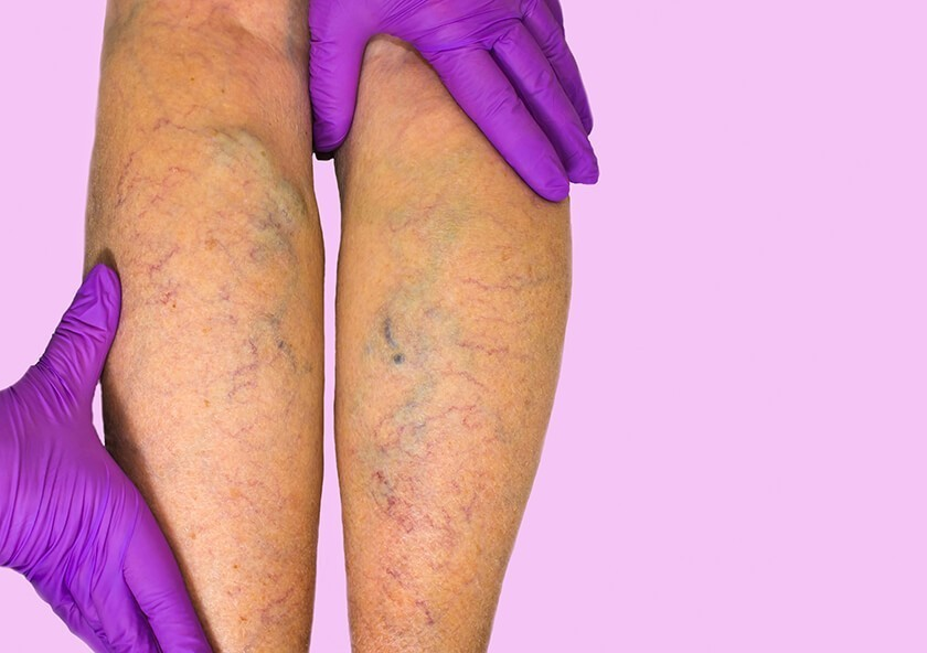 varicose veins on a patient's calves