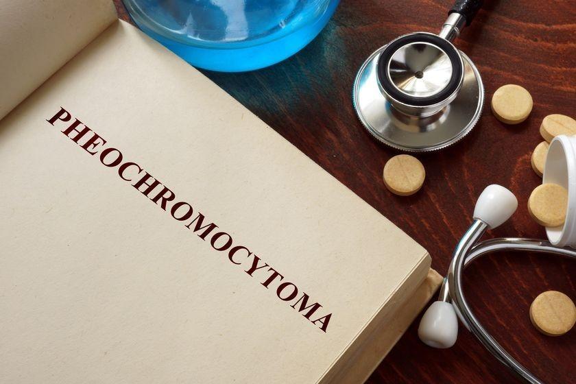 pheochromocytoma book