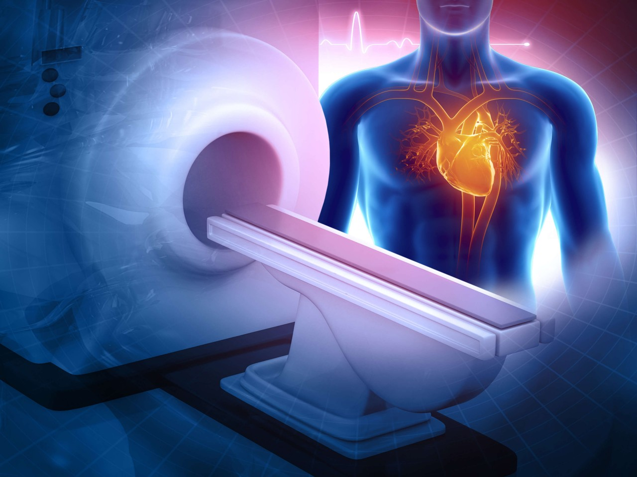 MRI as Good as Cardiac Catheterization for Diagnosing Coronary Heart Disease