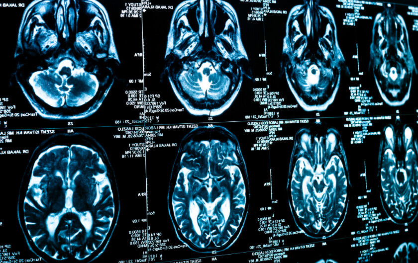 Imaging Shows how COVID-19 Affects the Brain