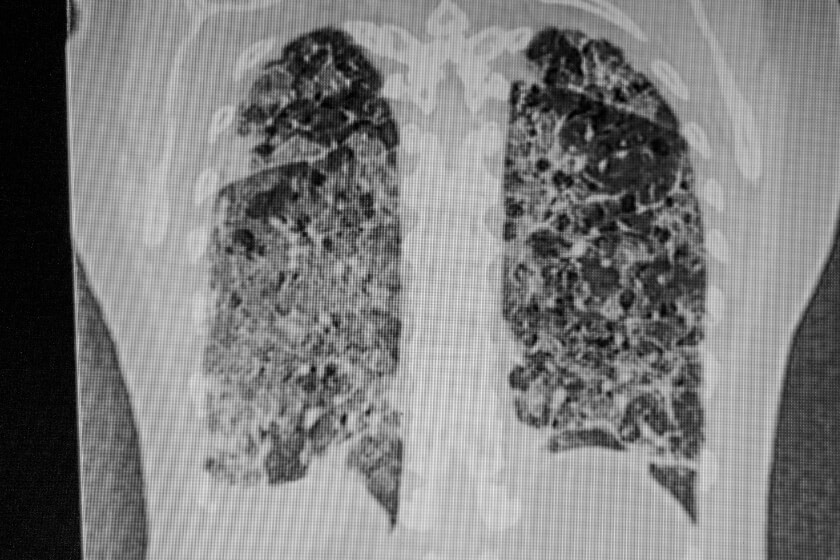 What Does COVID-19 Look Like on a CT Scan?