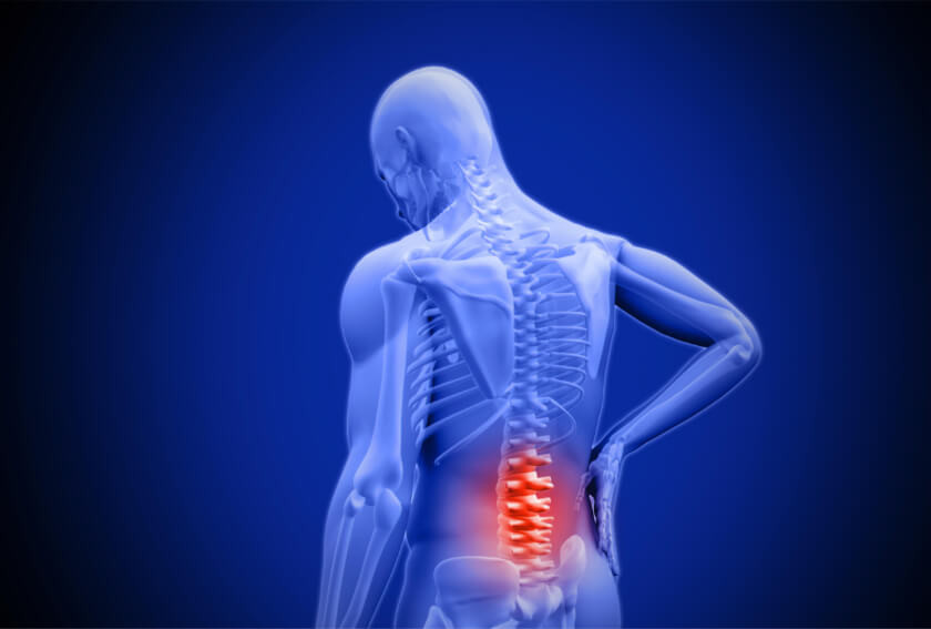 More than 20 Percent of U.S. Adults Experience Chronic Pain – How Radiology can Help Manage Pain
