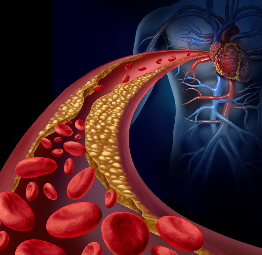 What You Need to Know about a Coronary Calcium Scan