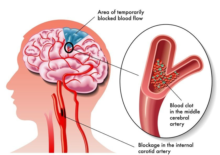 Diagram of how a stroke begins to develop in an artery
