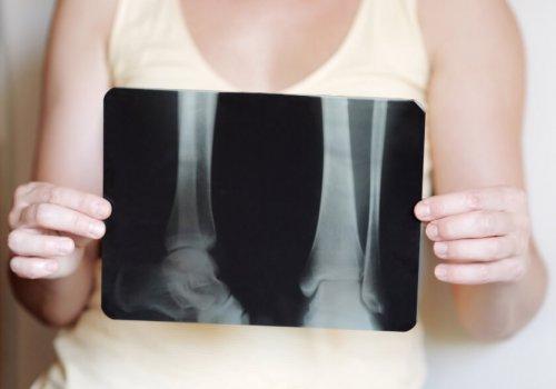 What Causes Bone Loss?